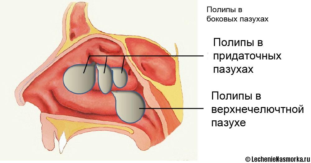 полипы пазух носа