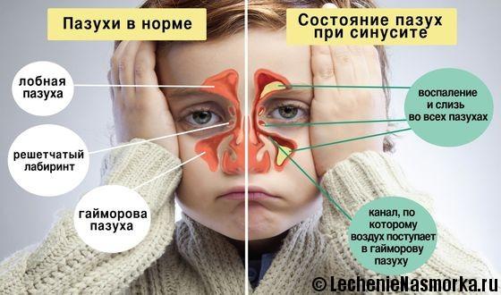 заболевание носа у ребенка
