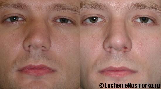 причины искривления носовой перегородки