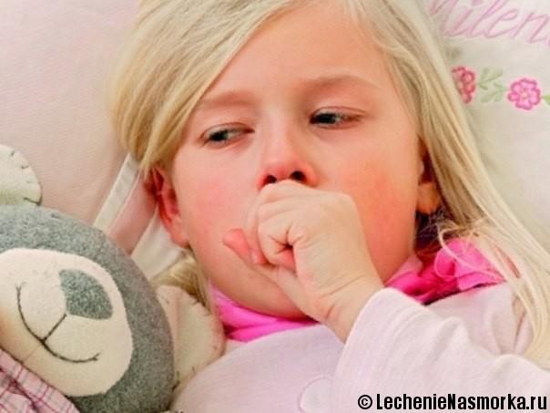 симптомы фронтита