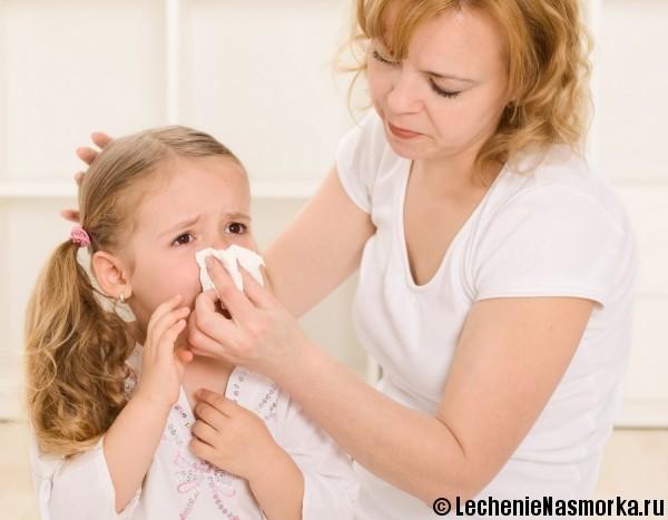 инфекционный ринит у детей