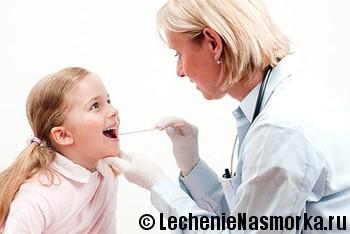 Симптомы фарингита у детей