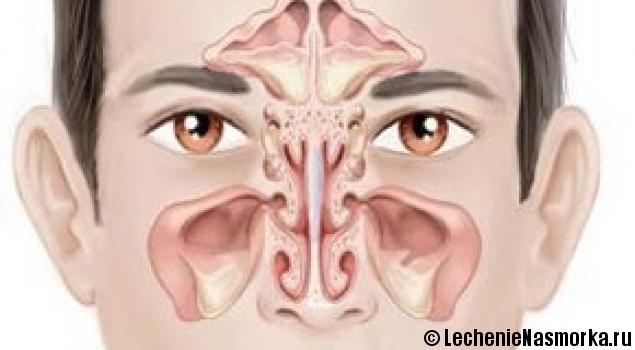 запах при гнойных выделениях из носа