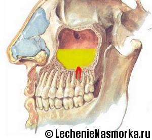 Одонтогенный гайморит фото черепа