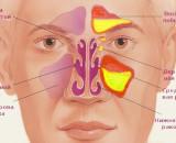 пневматизация пазух носа